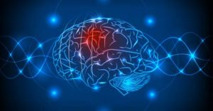 A Game-Changing Solution to One of the Most Devastating Diseases of the Brain: Stroke